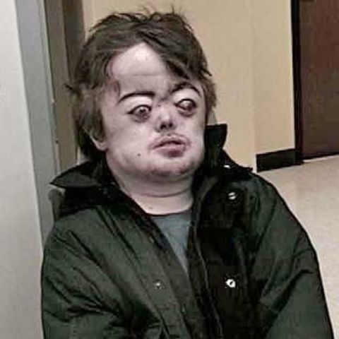 Brian Peppers had a condition that caused his body to behave differently than a normal human's.