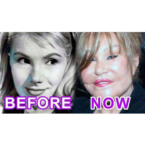 Jocelyn Wildenstein done plastic surgery many times.